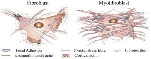 myofibroblasts